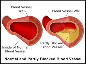 what-causes-ischemic-heart-disease3