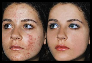 before-and-after-herbal-skin-lightening-soap