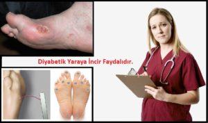 diyabet-ayakkabisi
