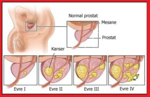 prostat-kanseri_1135512