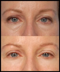 under-eye-surgery-cost-for-women-picture